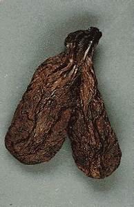 Настойка из бобровой струи при псориазе