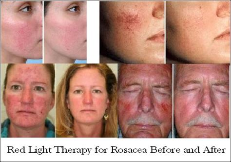 led light therapy before and after red light therapy reduce wrinkles age spots acne more