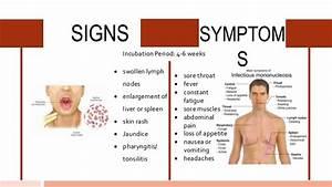 Infectious Mononucleosis Treatment Mono Symptoms Causes