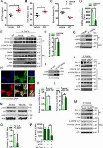Sirt2 Deacetylase Regulates The Activity Of Gsk3 Isoforms