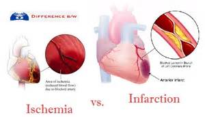 Distinction between Ischemia and Infarction - Difference Between  Cerebral Hypoxia Chest Pain