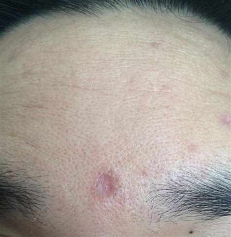 subcision   chicken pox scars scar treatments