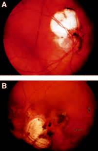 aicardi syndrome british journal  ophthalmology