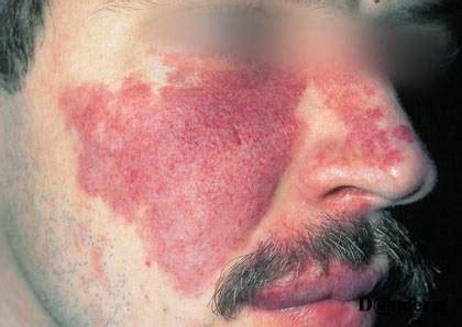 kozne bolesti ordinacija derma