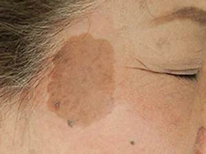 Uses - Complexi-Light Skin Whitening Cream  Skin Cancer Birthmarks - pigmented