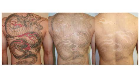 Comment Effacer Un Tatouage Au Laser ?  L'expertise Du Dr