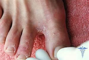 Можно ли красить ногти на ногах если грибок ногтях