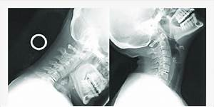 Tdr Device In Proper Placement  Lateral Flexion And