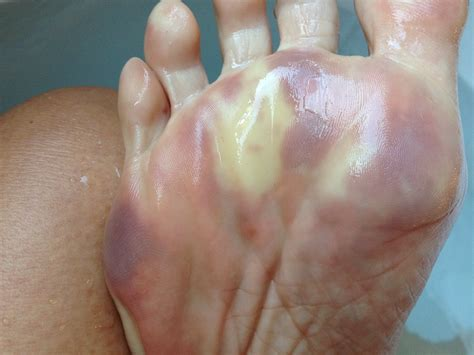 Raynauds Also Known As The Red White And Blue Disease