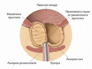 Эффективные народные средства от простатита и аденомы простаты