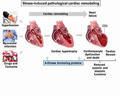 Cardiac Remodeling Diviani Dario Process Pathological Dd