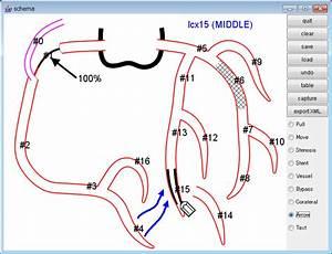 Heart Catheterization Results