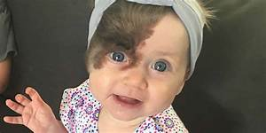 Birthmark Causes  Types Of Birthmarks And How To Get Rid
