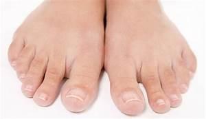 Средство от грибка на коже рук и ног