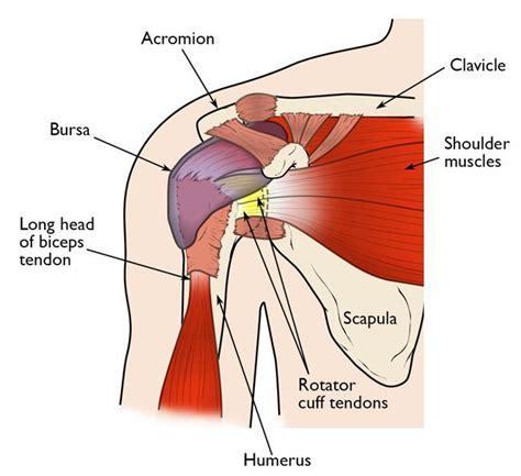 Shoulder Impingement/rotator Cuff Tendinitis