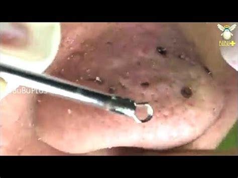 bubuplus   clear acne blackheads removal