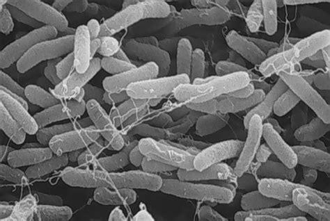 27. Earth Bacteria--e. Coli