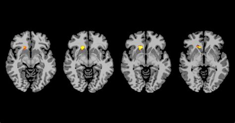 brain scans show   type  diabetics   blood
