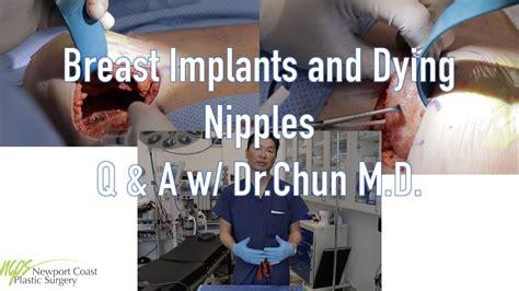 Dr Chun Plastic Surgeon Newport Beach Ca