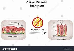 Celiac Disease Treatment Nutrients Not Absorbed Stock