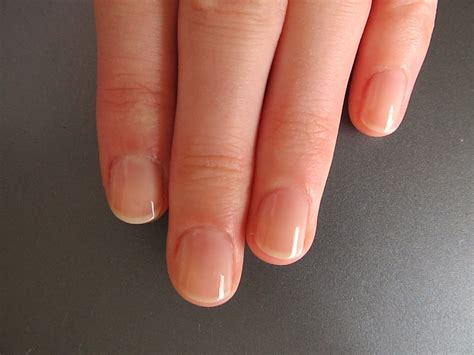 7 Effective Ways To Stop Biting Your Nails Parhlo