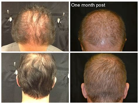 Hair Implants Yonkers Ny 10702 Neograft Hair Transplant In Westchester Rye Brook Ny