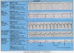 Cardiac Arrhythmias Reference Chart  U2013 Cardiovascular