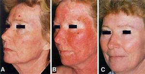 Chemotherapy For Disseminated Actinic Keratoses With 5-fluorouracil And Isotretinoin