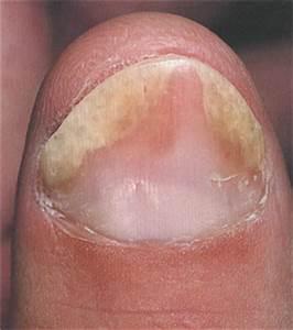 Лечение псориаза складок