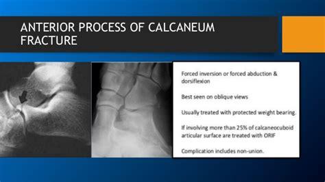 calcaneum fracture pathoanatomy  fracture pattern