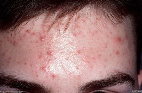 Acne Yeast Infection Guide