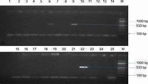Agarose gel electrophoresis of PCR products of ...