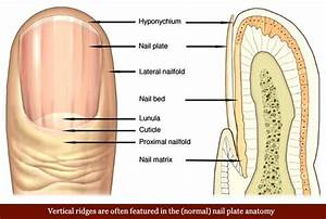 Vertical Ridges In The Nail Plate Usually Represent A