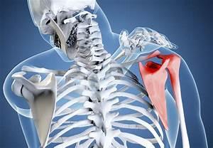 Лечение остеохондроза на хайнань