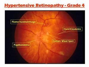 Hypertensive Retinopathy Vs Diabetic Retinopathy