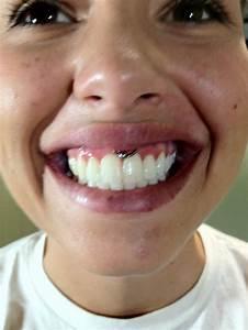Smiley  Piercing  Body Piercing