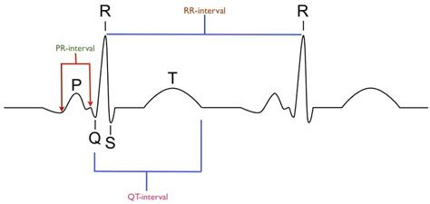 the qt interval starts at the beginning of the qrs complex and images frompo