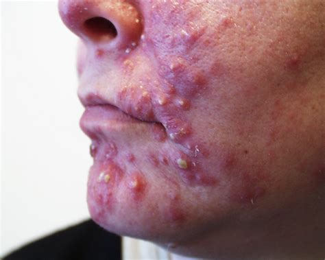 Medical Pictures Info Acne Cyst