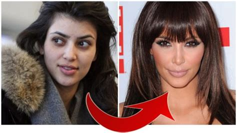 Kim Kardashian Before And After Plastic Surgery   Bad ...