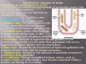 Kidneys Pathology   Subject 17