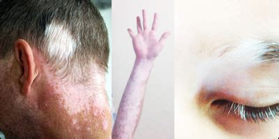 dr goutam guha vitiligo kolkata pigmentation