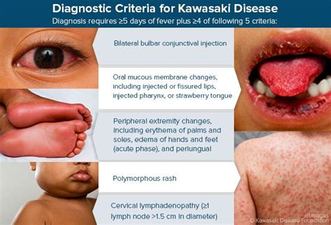 Kawasaki Disease Diagnosis by Diagnostic Criteria For Kawasaki Disease Blood Vessels