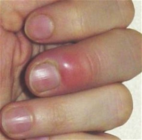nail bed infection purple white blue damages injury