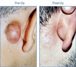 hypertrophic scar steroid injection side effects