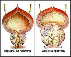 Аденома предстательной железы симптомы и лечение диагностика