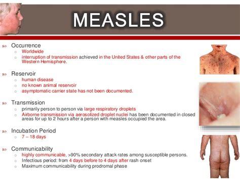 Measles Mumps and Rubella Symptoms