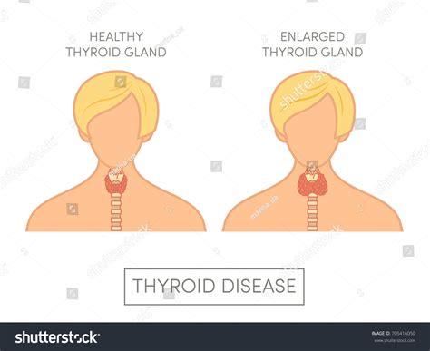 Healthy Woman Female Enlarged Thyroid Gland Stock Vector