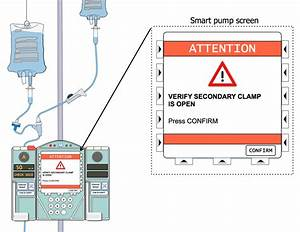 Setting Up Secondary Intermittent Iv Infusions  Smart Pump