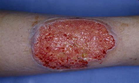 Pyoderma Gangrenosum - Pictures, Symptoms, Causes