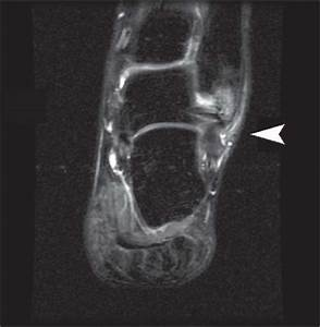The Foot and Ankle | Radiology Key  Calcaneofibular